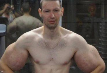 """""""بوباي روسيا"""" أشعر بالغباء بعد عملية العضلات"""