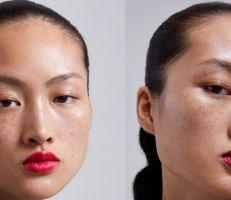 """حملة لـ""""زارا"""" تشعل الجدل حول النمش ومعايير الجمال في الصين"""