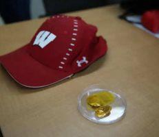 قبعة ترسل نبضات كهربائية لفروة الرأس لعلاج الصلع
