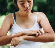 5 نصائح مهمة يجب على مرضى الصدفية مراعاتها