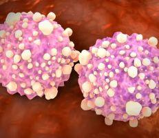 اختبار دم جديد يمكن أن يكشف 50 نوعاً من السرطان