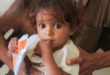 صحيفة الغارديان البريطانية: 5 ملايين يمني على شفا المجاعة.. و16 مليونآخرين مهددون